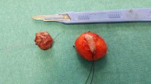 Chirurgo Maxillo Facciale dr. Francesco Sacco