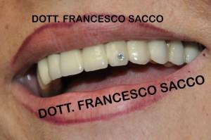 Implantolgia Salerno DR.SACCO