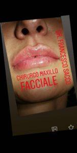 FILLERChirurgia Maxillo Facciale Salerno Dr. Francesco Sacco Padula Avellino