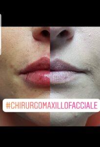 Chirurgia Maxillo Facciale Salerno Dr. Francesco Sacco Padula Avellino