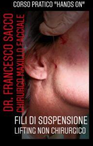 Fili di Sospensione Lifting non Chirurgico PROF.FRANCESCO Centri Dentistici Dr.Francesco Sacco Chirurgo Maxillo Facciale Estetica